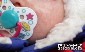 小孩子在冬天患上湿疹怎么护理比较好