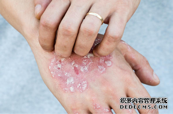 婴儿湿疹家长怎么预防效果好呢